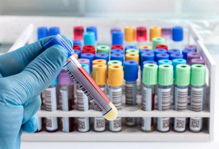 Blutuntersuchung urologische Praxis Nguyen
